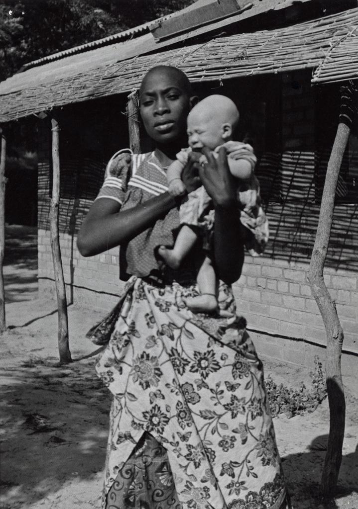 Enfant albinos dans les bras de sa mère